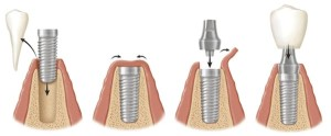 etapi_implantacii_zubov