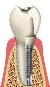 implant-175x300
