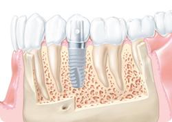 implantaciya_zubov